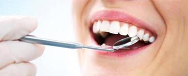 Tẩy răng trắng